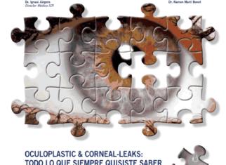oculoplastic