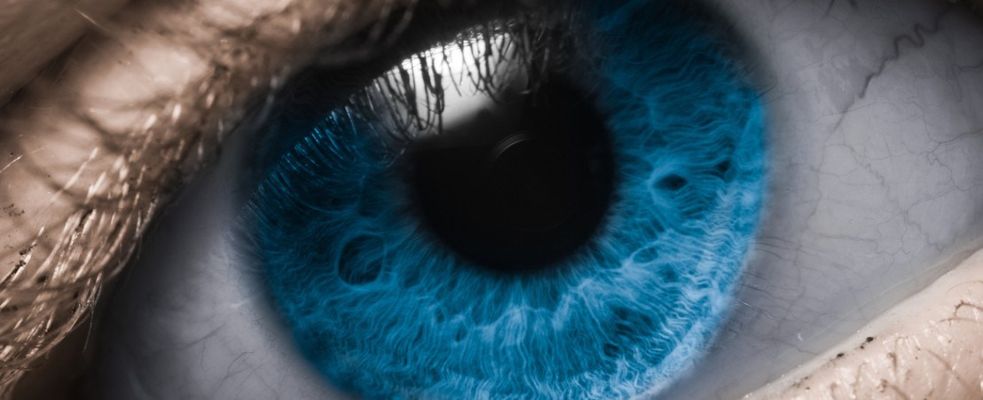 Frequently asked questions about refractive surgery