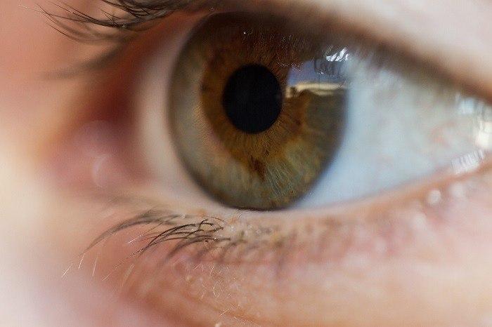 الحول ماهو الحول كيف تكون معالجة الحول في البالغين Institut Catala De Retina