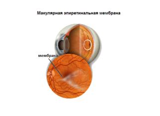 Макулярная эпиретинальная мембрана