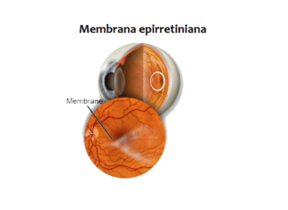 Membrana epirretiniana macular