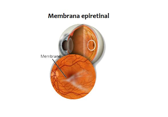 Membrana epiretinal macular