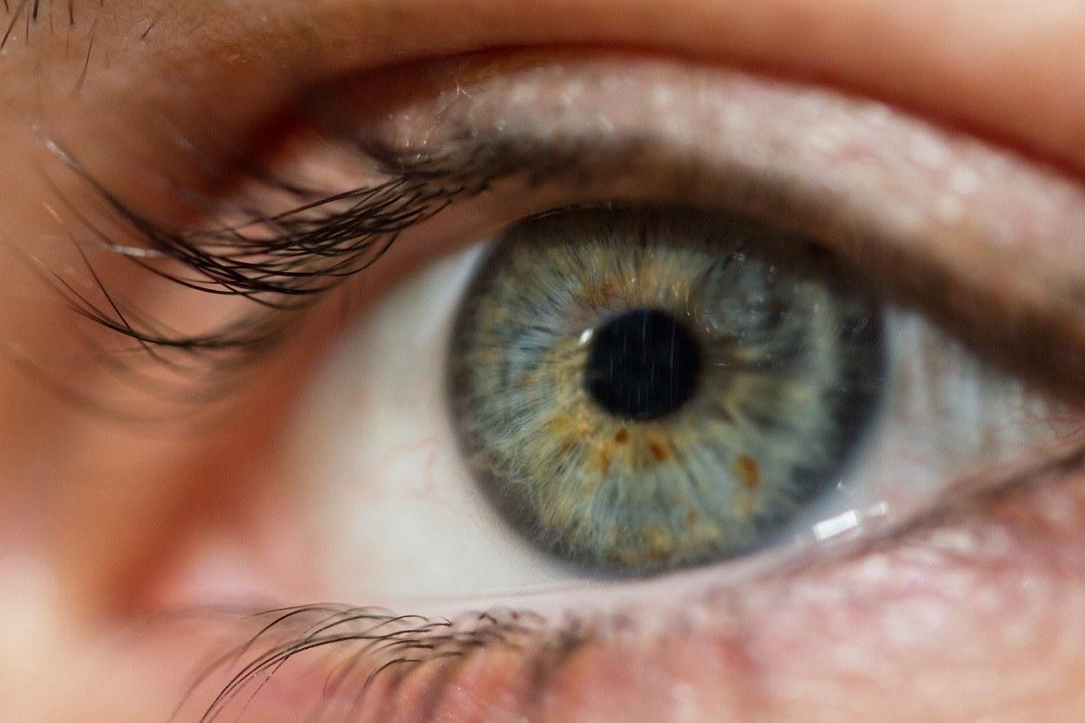 جفاف العين أو ألتهاب القرنية و المتحمة الجاف