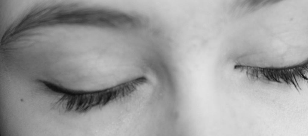 Eyelid malpositions