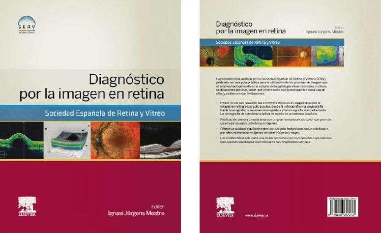 """Dr. Jürgens """"Diagnòstic per la imatge en retina"""""""