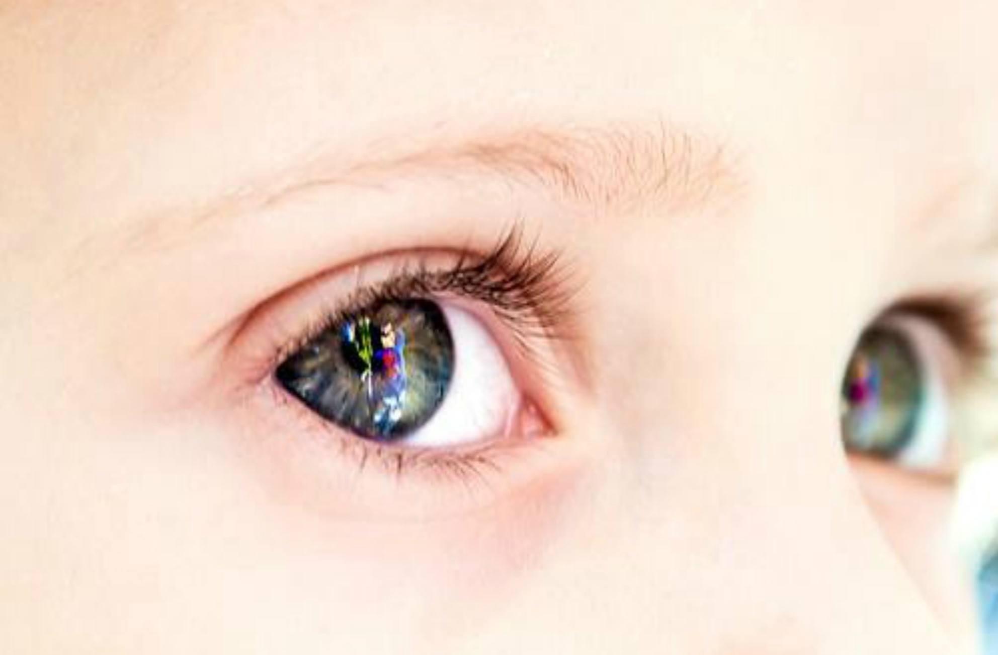 Malalties oculars freqüents en els nens