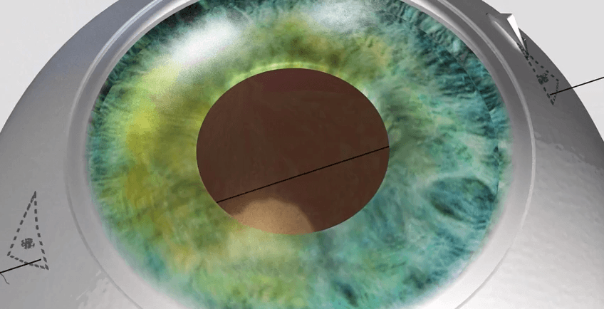 Publication in the Journal of Cataract and Refractive Surgery of the new surgical technique designed by Dr. Jürgens