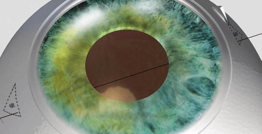 Publication dans le Journal of Cataract and Refractive Surgery de la nouvelle technique chirurgicale, conçu par le Dr Jürgens