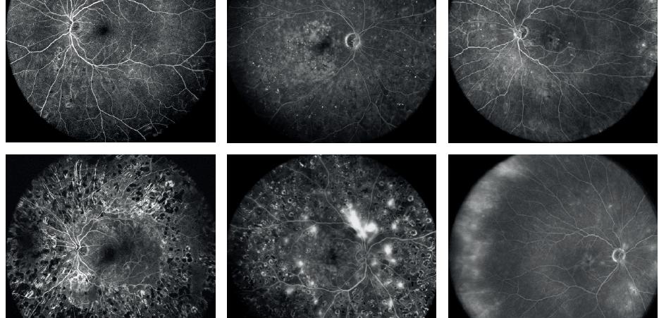 Флюоресцентная ангиография сечатки широко спектра