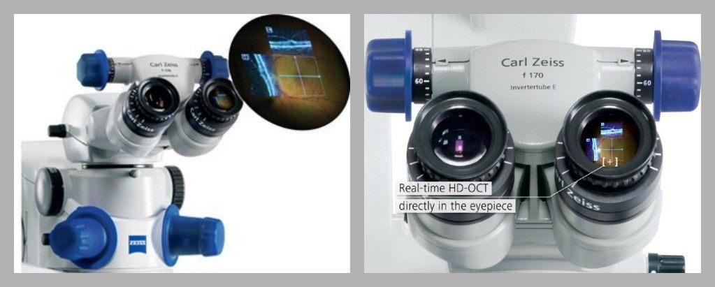 Операционный микроскоп, управляемый ОСТ