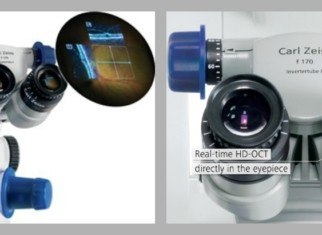 microscopio intraoperatorio guiado por OCT