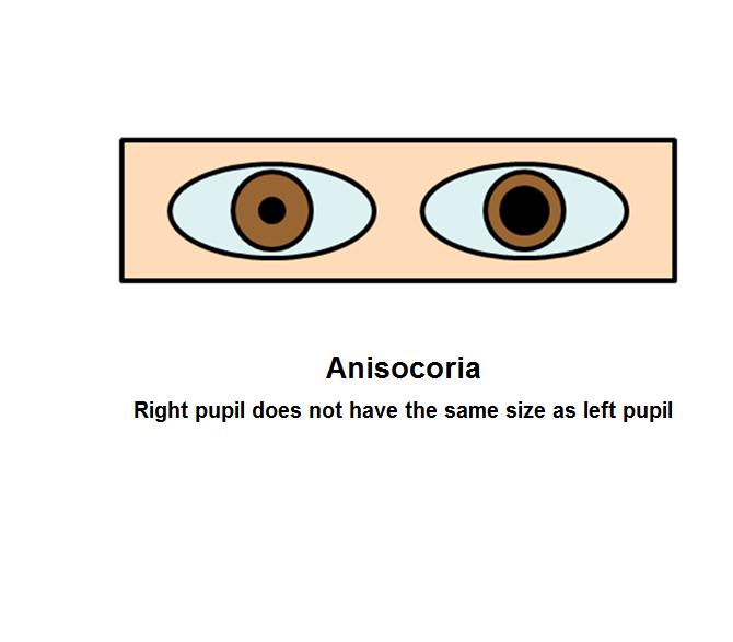 Pupillary abnormalities: anisocoria
