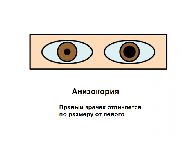 Асимметрия размера зрачков глаз: Анизокория