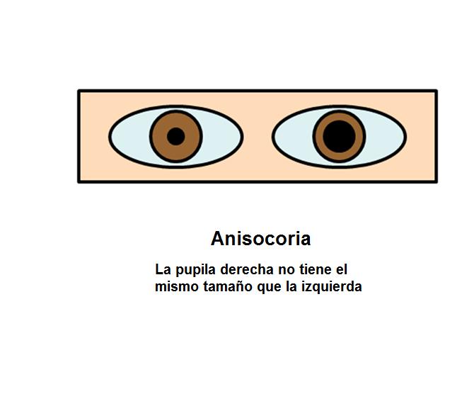 Los trastornos en las pupilas: la anisocoria
