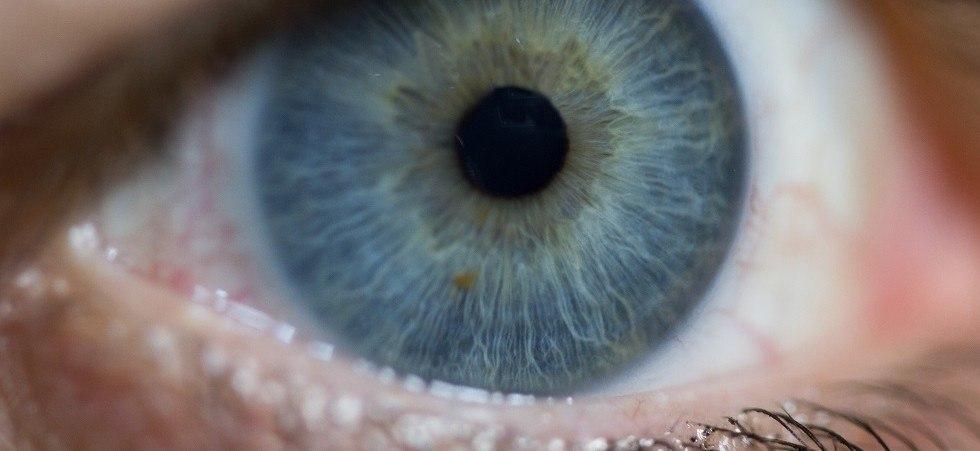 حركة العين و الحول