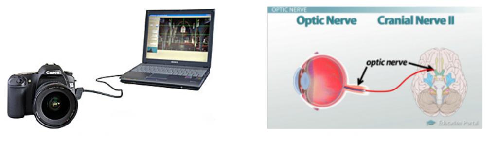 Nervio óptico - neuritis óptica