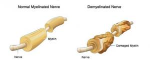 nervio óptico desmielinizado