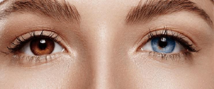 Per què hi ha persones amb els ulls de diferent color?