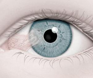 ظُفرة العين