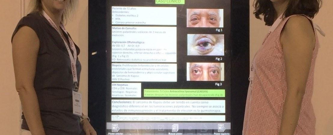 Las doctoras Ibáñez y Cifuentes de oculoplastia - Congreso de la SEO 2016