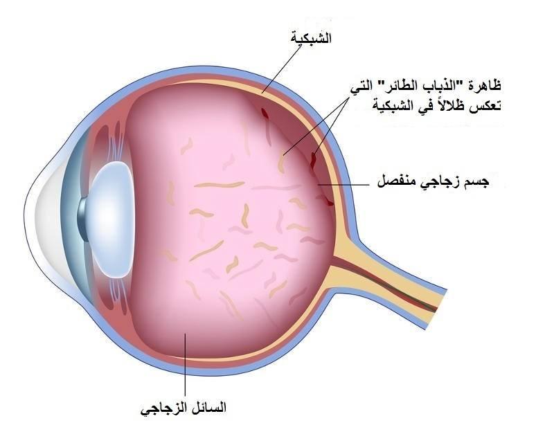 مرض أنفصال الجزء الزجاجي في العين ما هو و ما اهي انواعه Icr