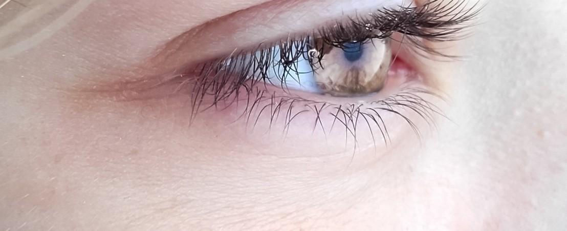 اورام الجفون و محجر العين