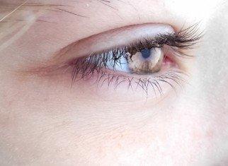 أورام الجفون و محاجر العين