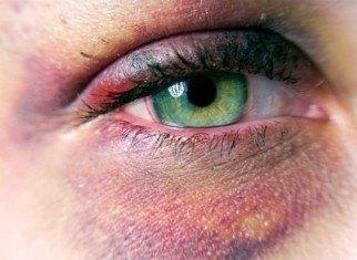 الأصابات البصرية