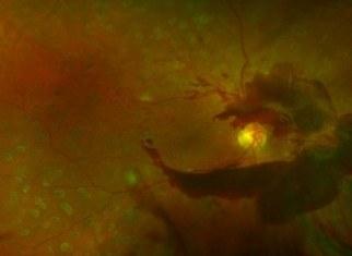 Кровоизлияния в стекловидное тело
