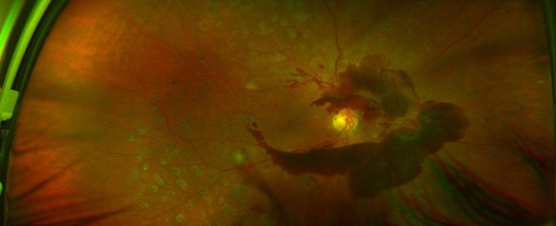 Hemorragia vítrea