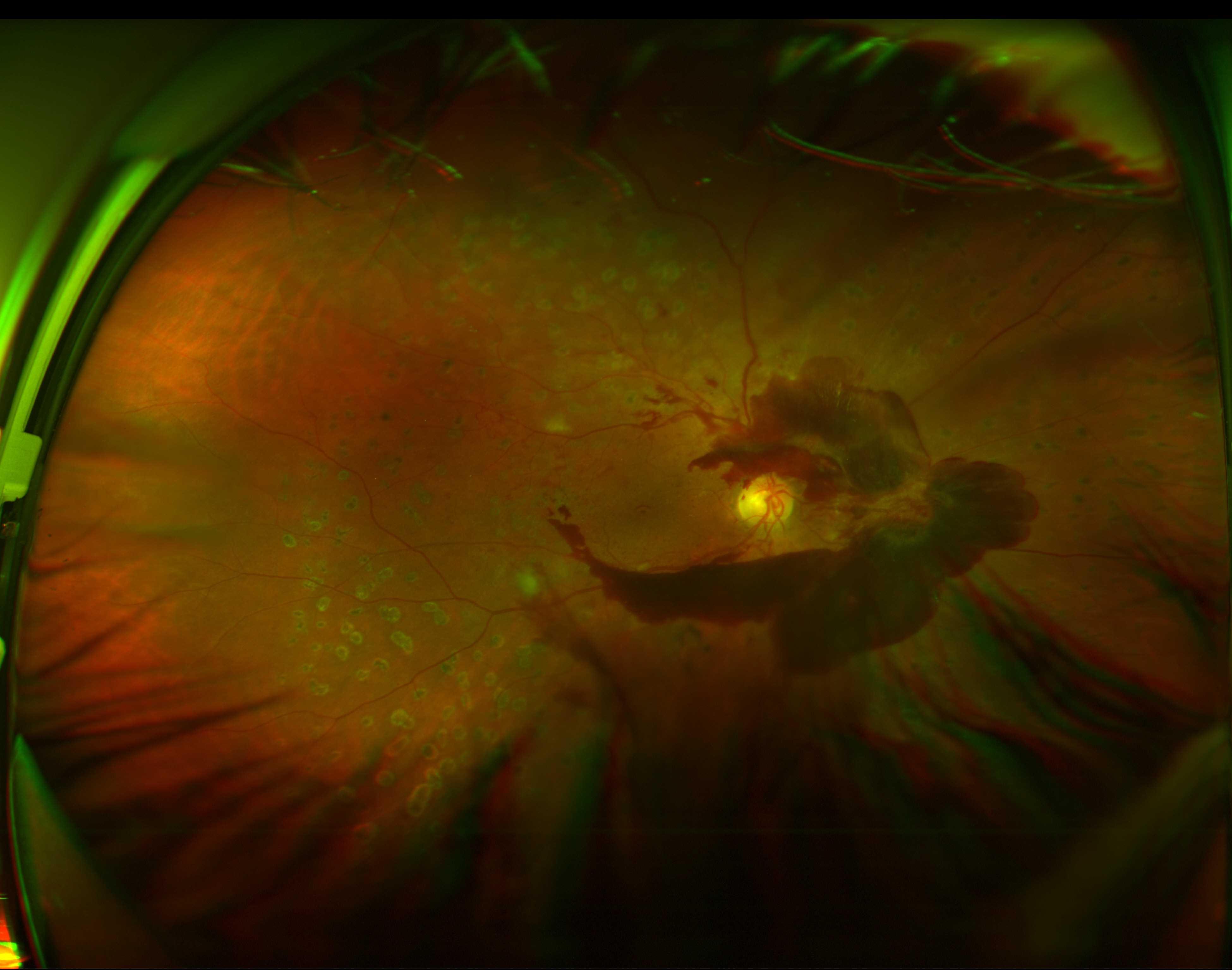 Hémorragie du vitré. Perte de vision, vision floue et corps flottants.
