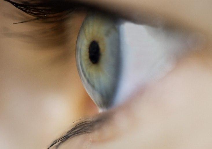 Cirurgia refractiva