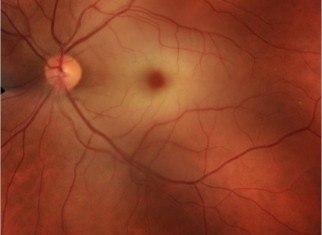 oclusiones arteriales y venosas de la retina
