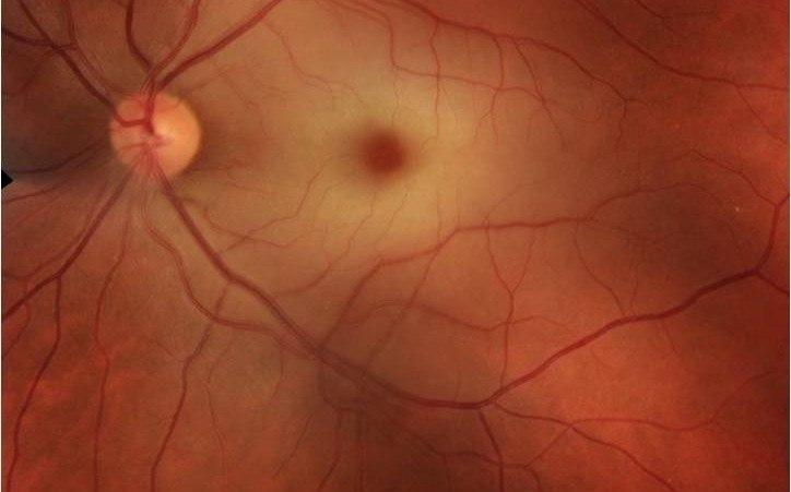Окклюзии центральной вены и артерии сетчатки