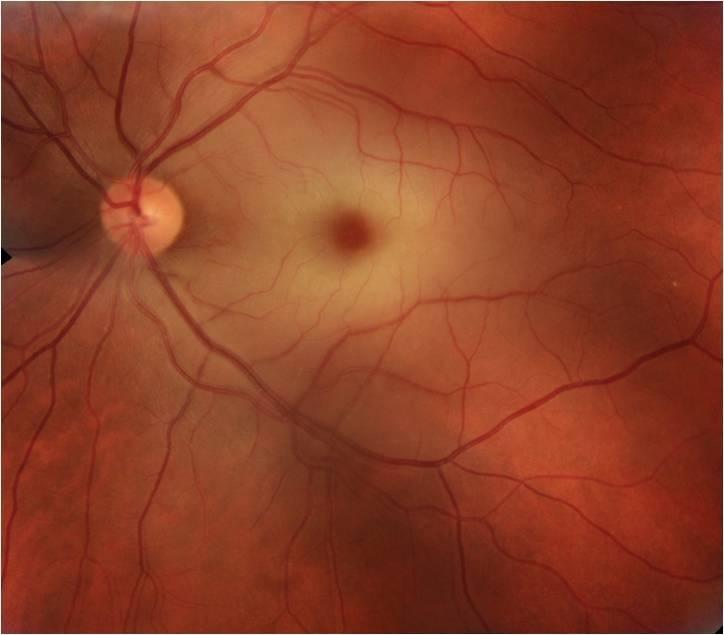 Oclusiones u obstrucciones de las venas y arterias de la retina