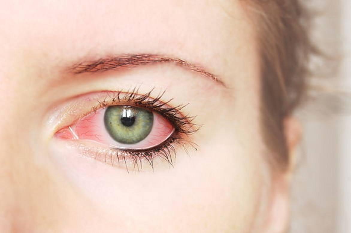 pseudomona en el ojo