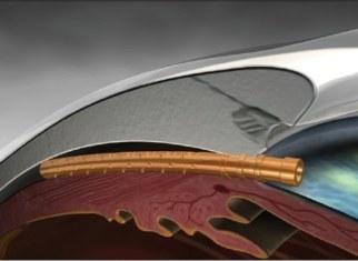 chirurgie de glaucome