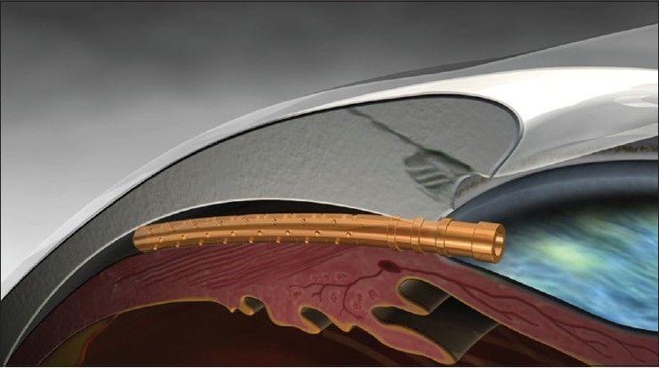Le Dr. Antón réalise plusieurs chirurgies de glaucome en direct avec l'implantation du CYPASS