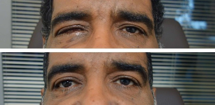Reconstrucción de cavidades oculares