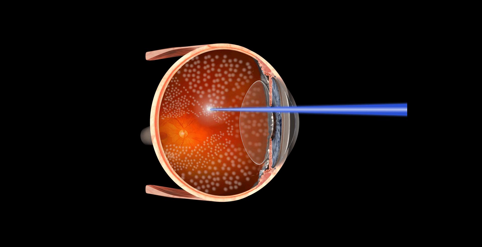 Photocoagulation au laser