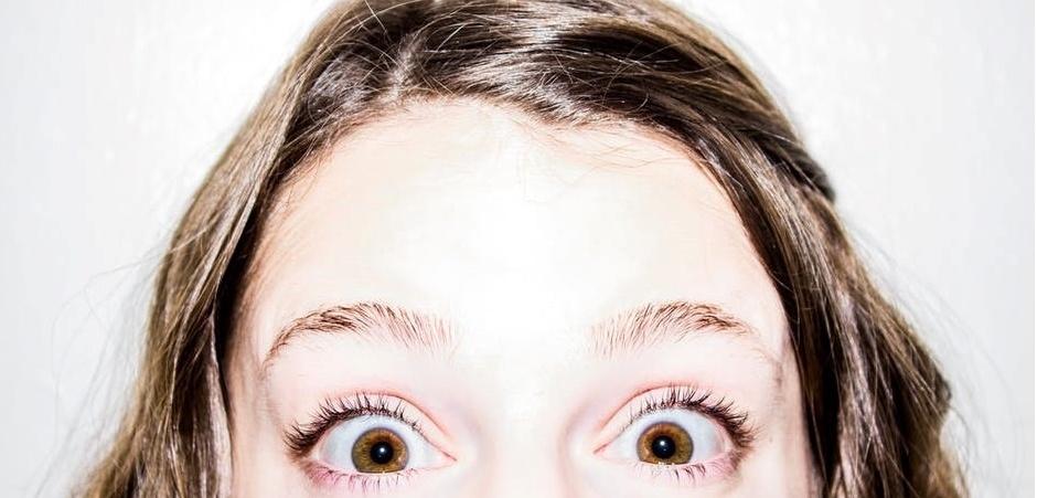 ما هو سبب اللون البنيّ في أغلب عيون البشر؟