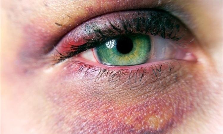 Глазные травмы