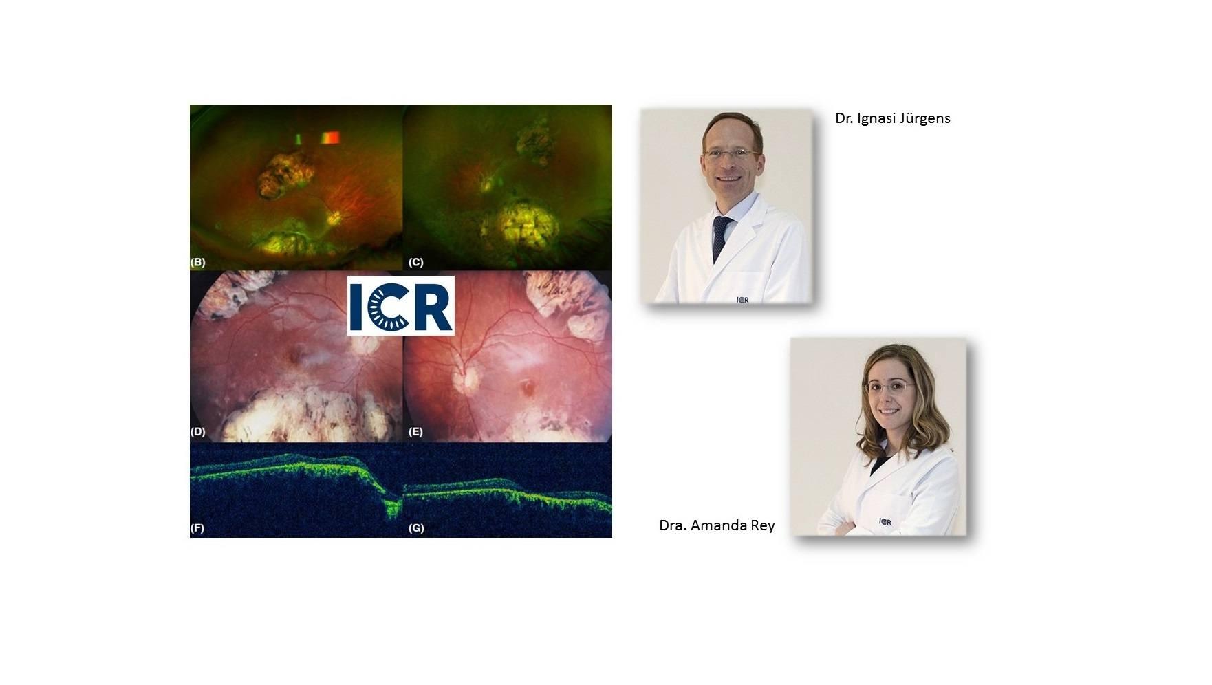 Изменения глазного дна в случаях микроцефалии могут указывать на врожденную лихорадку Зика
