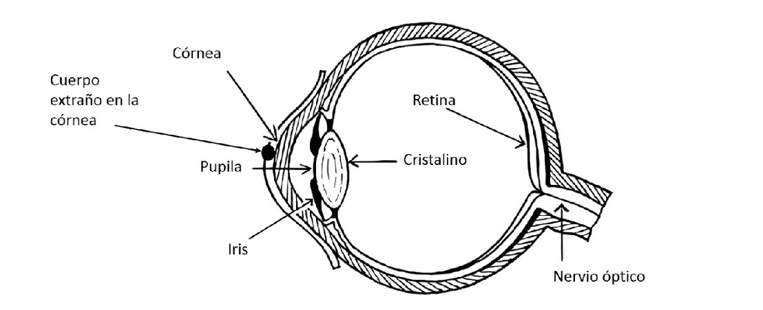 Corneal injuries: lacerations and erosions