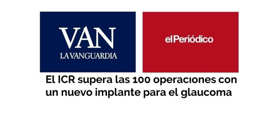 Els mitjans es fan ressò de la nova fita assolida per l'ICR dins de l'àrea de glaucoma