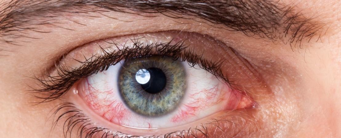 Ojos rojos: ¿qué hacer?