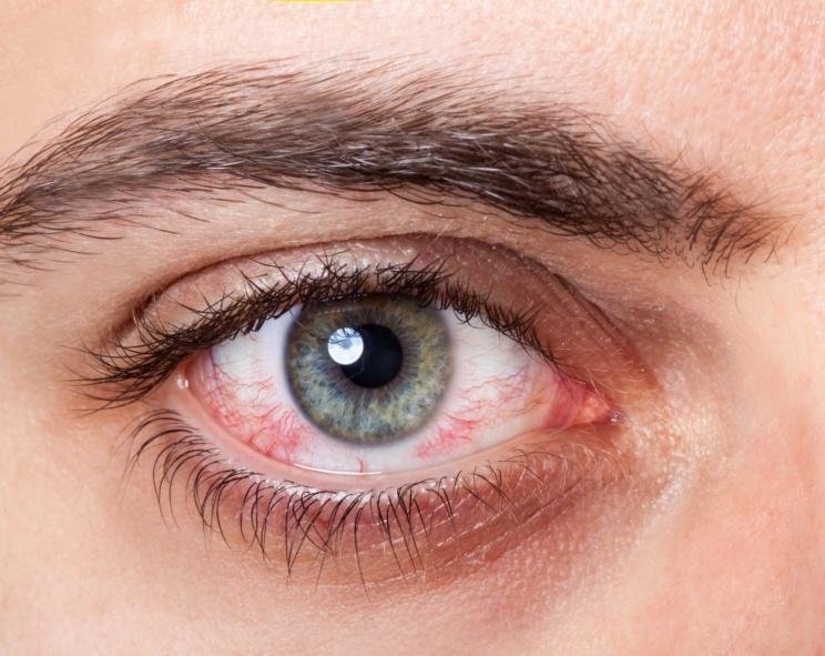 remedios para el ojo rojo