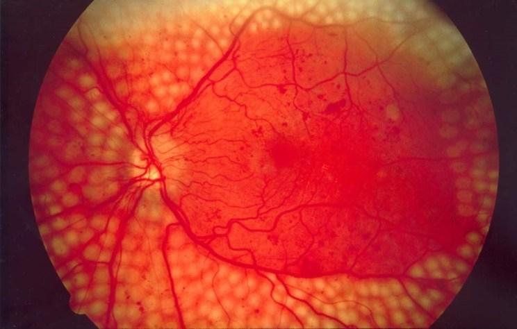 retinopatia diabètica