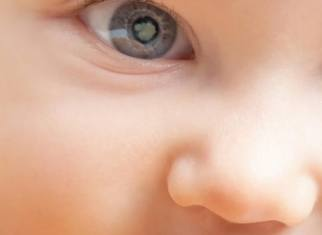 Enfant avec cataracte - ICR