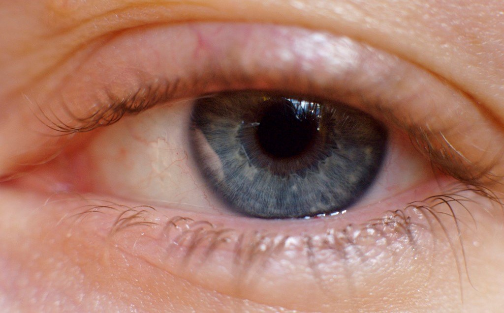 Blepharitis. What is it and how is it treated?